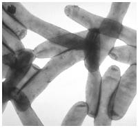 Control de plagas: legionella